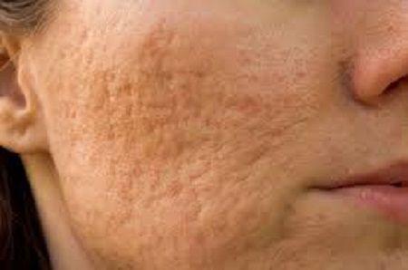Trị sẹo lõm đơn giản trên mặt bằng cách nào1